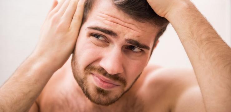 Calvície: quais as principais causas da queda de cabelo nos homens?
