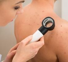 Câncer de pele: confira 4 dicas para se prevenir!