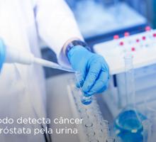 Método detecta câncer de próstata pela urina