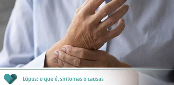 Lúpus: o que é, sintomas e causas